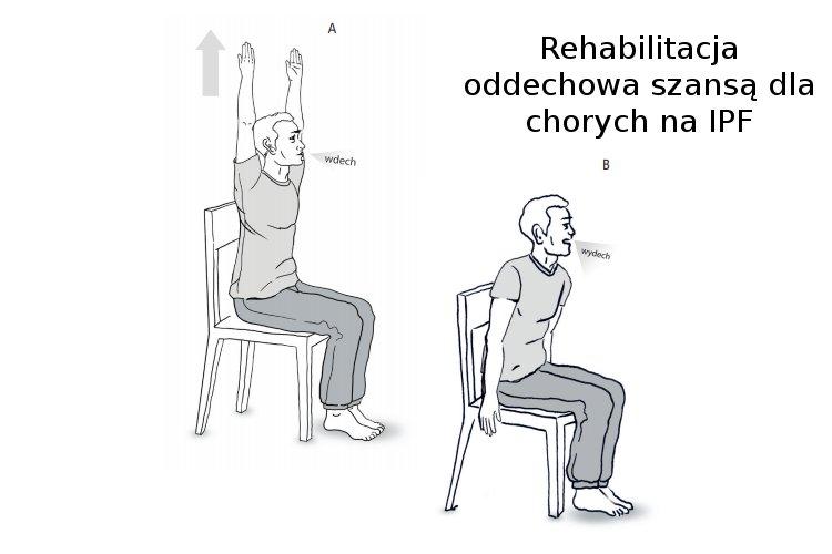 Rehabilitacja oddechowa szansą dla chorych na IPF