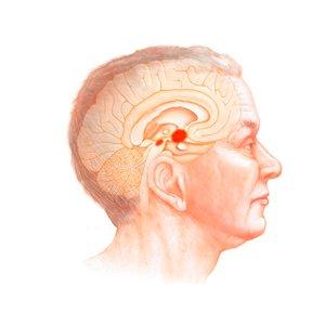 Czym jest choroba Parkinsona?