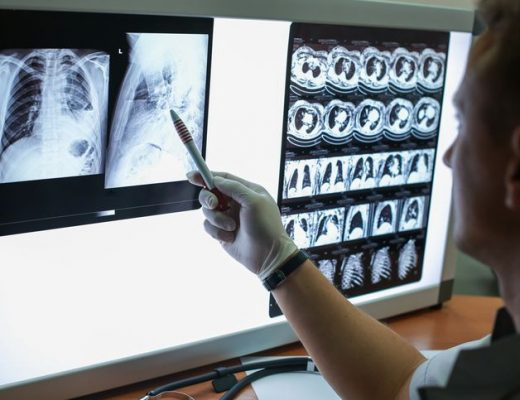 Zapadalność na gruźlicę w Polsce przekracza średnią europejską